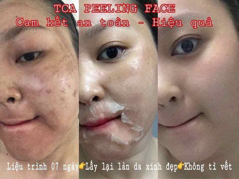 Gel thạch collagen Pro Spa Peel Off Face - HX1668 (Ảnh 1)