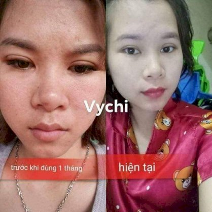 Mặt nạ vychi